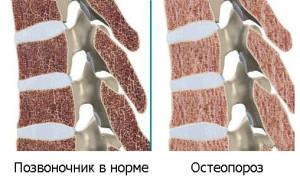 Остеопороз позвоночника лечение