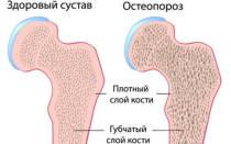 Что такое остеопороз и как он проявляется