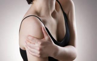 Невралгия плечевого сустава
