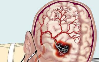 Препараты для мозгового кровообращения при шейном остеохондрозе