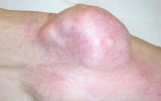 Рак суставов симптомы