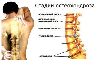 Остеохондроз грудного відділу хребта симптоми
