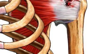 Разрыв сухожилий плечевого сустава лечение