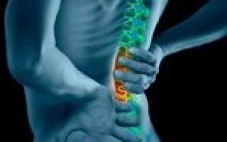 Корешковый синдром позвоночника