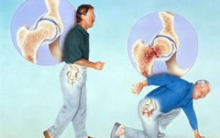 Остеопороз у мужчин симптомы и лечение