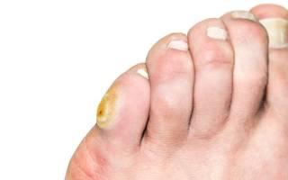 Болит мозоль на пальце ноги