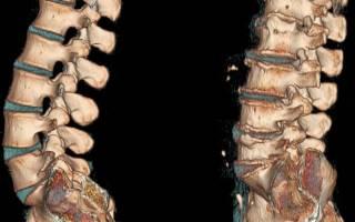 Лфк при остеохондрозе поясничного отдела позвоночника видео