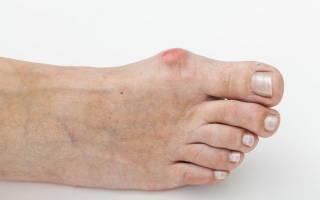 Болят косточки на ногах возле большого пальца
