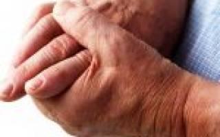 Воспаление суставов пальцев рук лечение