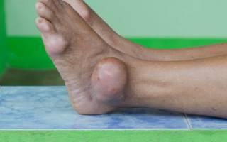 Полиартрит ног симптомы и лечение