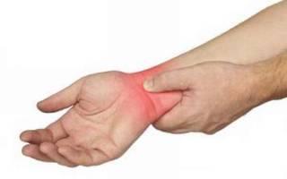 Ушиб лучезапястного сустава лечение