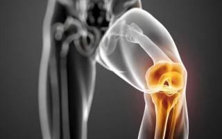 Укрепление костей после перелома