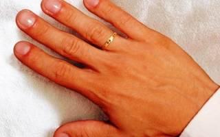 Как лечить подагру на руках