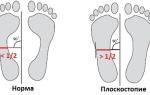 Развитие у человека плоскостопия связано с