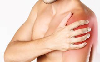Ноющая боль в плечевом суставе левой руки