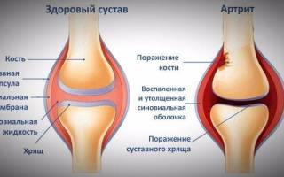 Артрит симптомы и лечение фото