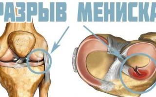 Что делать если болят коленные суставы