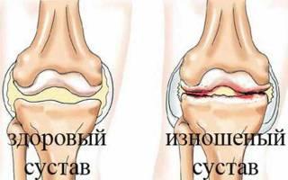 Точки постановки пиявок при бурсите коленного сустава