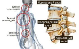 Гимнастика для грудного отдела позвоночника