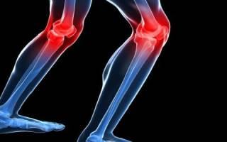 Доа 1 степени коленного сустава