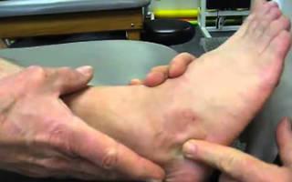 Реабилитация после перелома пяточной кости