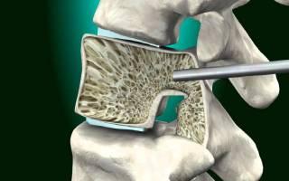 Вертебропластика позвоночника отзывы после операции