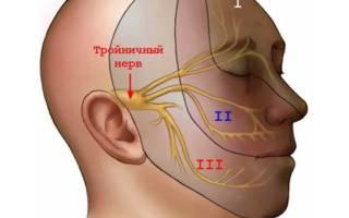 Защемление тройничного нерва симптомы