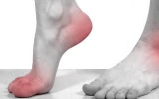 Остеоартроз стопы 1 степени лечение