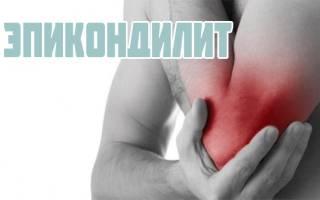 Эпикондилит локтевого сустава симптомы и лечение