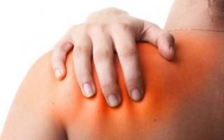 Болезни плечевого сустава