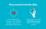 Ревматоидный артрит статистика