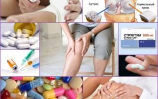 Лекарства от артроза коленного сустава