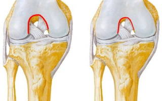 Разрыв передней крестообразной связки коленного сустава операция