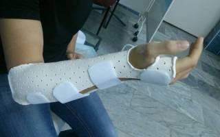 Как быстро срастить кости после перелома