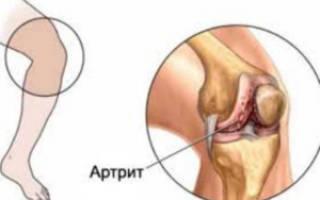 Ревматоидный артрит симптомы и лечение у детей