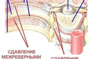 Защемление межреберного нерва симптомы