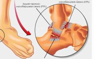 Разрыв связок голеностопного сустава лечение