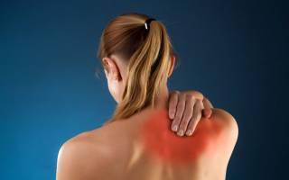 Чем опасен остеохондроз шейного отдела