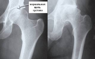 Зарядка при коксартрозе тазобедренного сустава