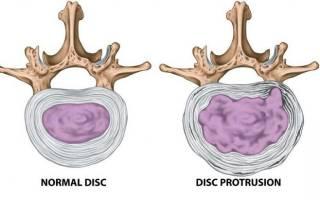 Как лечить протрузии шейного отдела позвоночника