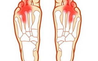 Болит подошва ноги около пальцев