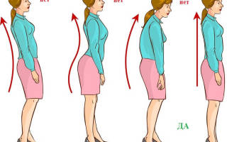 Упражнения при нарушении осанки