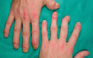 Лечение псориатического артрита народными средствами