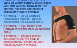 Разрыв связок плеча