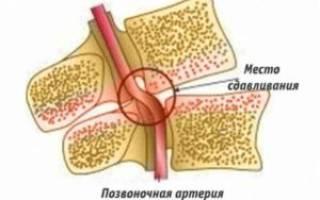 Может ли при остеохондрозе повышаться давление