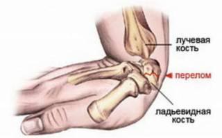 Признаки трещины в кости руки