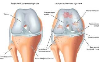 Гимнастика при артрозе коленного сустава по бубновскому