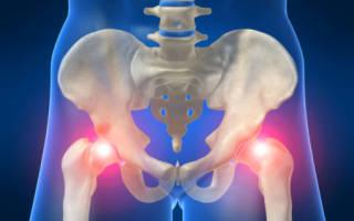 Перелом тазобедренного сустава в пожилом возрасте