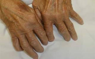 Ревматоидный артрит симптомы фото