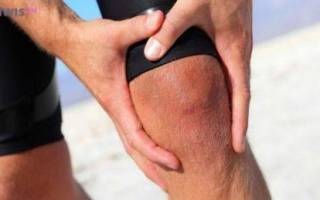 Ударился коленом болит при сгибании
